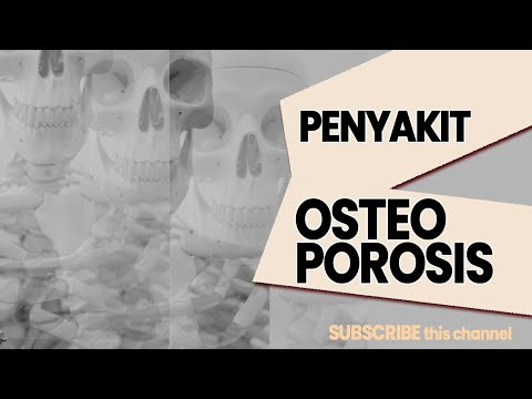 Video Osteoporosis