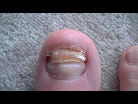 Die Klinik der Behandlung die Schuppenflechte der Nägel