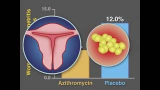 Post-Cesarean Infection and Antibiotic Prophylaxis