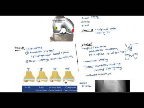 Ízületi gyulladás és ízületi gyulladás kezeléséről