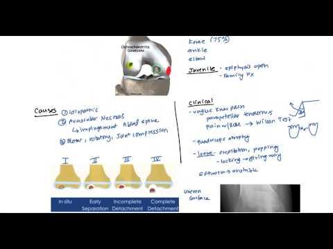 Sintomi osteochondrosis cervicali ed esercizi