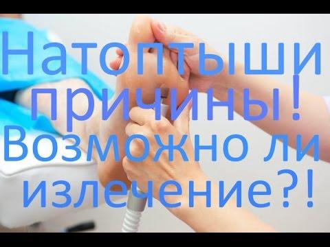 Натоптыши - причины возникновения и лечение