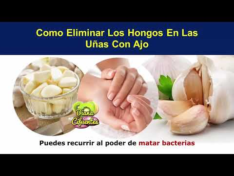Por que medio de sanar el hongo de uña