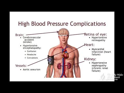 Arteriendruck bei zwei verschiedenen Druckarmen