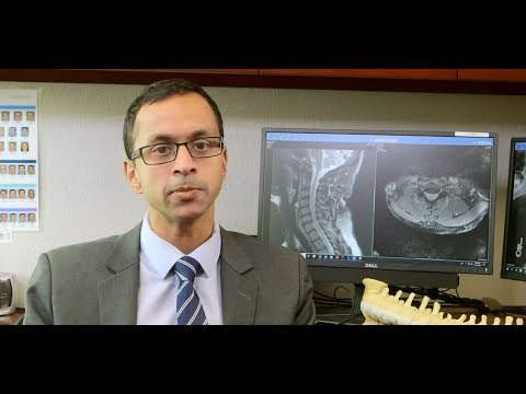 Image - HSS Minute: Personalized Spine Care
