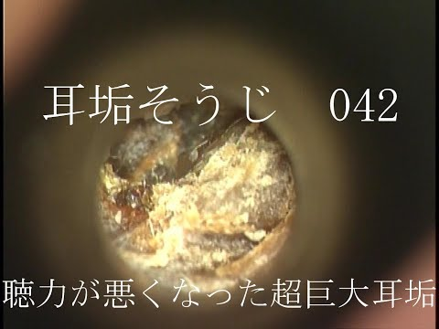 , title : '耳垢そうじ/聞こえが悪くなった超巨大な耳垢/042