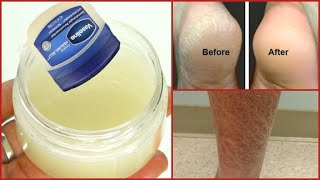 GET RID OF DRY ROUGH SKIN IN MINUTES, CRACKED HEELS, DRY ELBOWS KNEES + STRETCH MARKS, VARICOSE VEIN