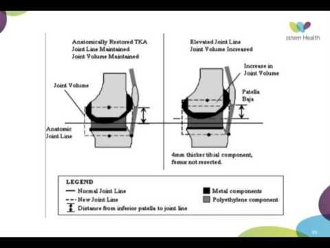Anzeichen von Arthritis und die Knie-Behandlung