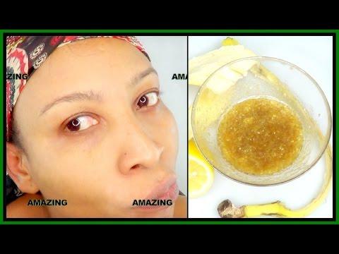 Botox injections para sa facial bili