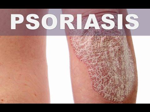 La psoriasis el tratamiento diprospan