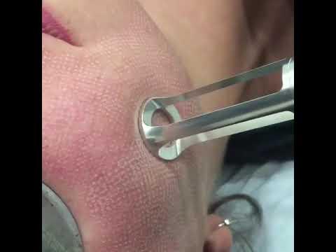 Maschera da posti di pigmentary