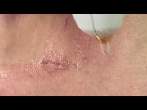 Trophic ulcere varicose di gambe