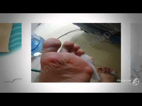 Сода и шишки на пальцах
