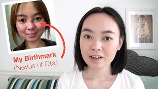 I Had a Birthmark on My Face - 4 Years After Removal (Nevus of Ota)