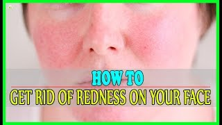 How To Get Rid Of Redness On Your Face? | Best Home Remedies