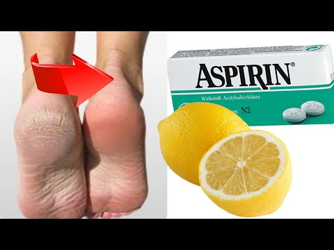 Vörös foltok a lábproblémán