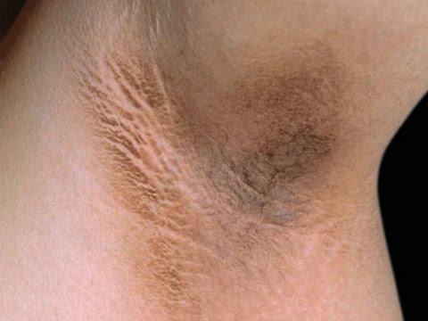 Lidasa ng pigment spots