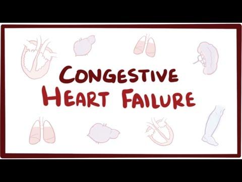 Congestive heart failure (CHF) – Osmosis (video)