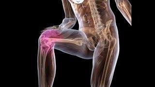 Боли в коленях Вылечить раз и навсегда