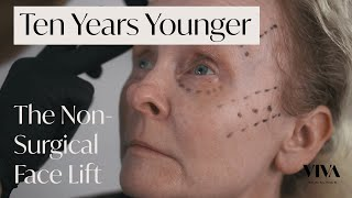 10 Years Younger: Non-Surgical Facelift with Dermal Fillers | VIVA Skin Clinics