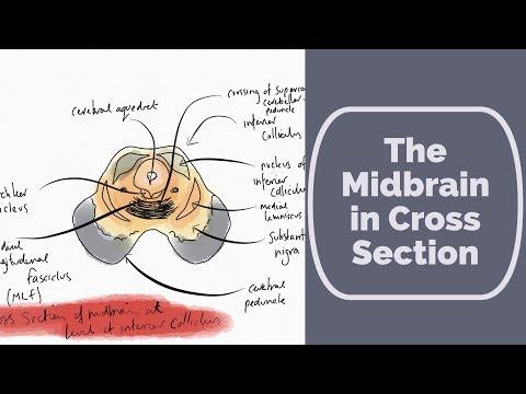 Ķirurģiska ārstēšana prostatas vēzi