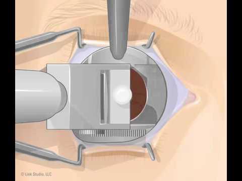 A szem látása, ahogy látjuk