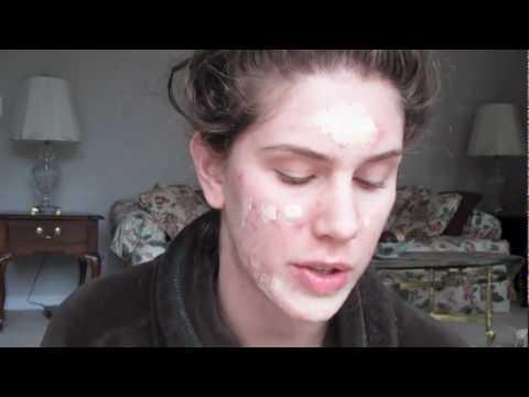 Les taches de pigment dans loeil chez lenfant