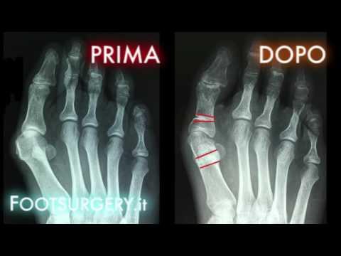 Artrosi dellarticolazione del ginocchio, che la dieta