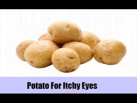 Video Top 11 Home Remedies For Itchy Eyes