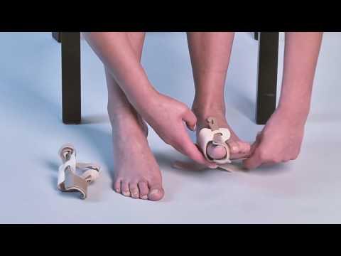 Koślawe kolana korektor pro kości
