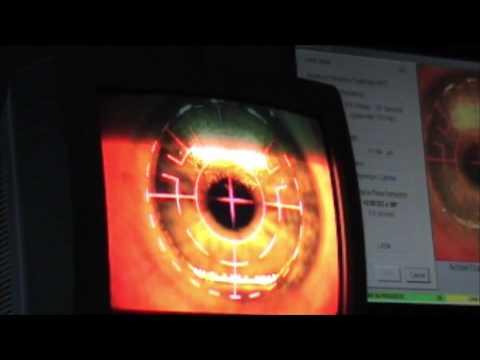 Stazione termale un gel per la pelle di maschera intorno a occhi