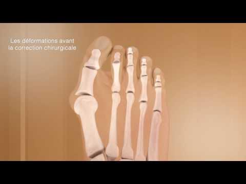 Comme se délivrera des douleurs des veines dans les pieds