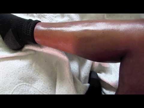 Hiina retseptid prostatiit