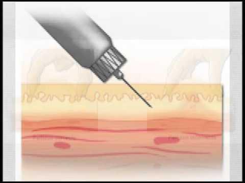 Nanotecnología en la diabetes tipo 1