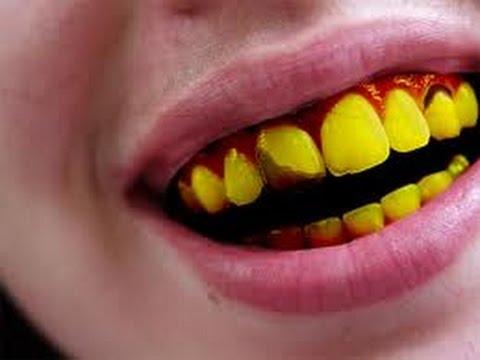 Video 5 Penyebab Gigi Menjadi Kuning dan Cara Mengatasinya