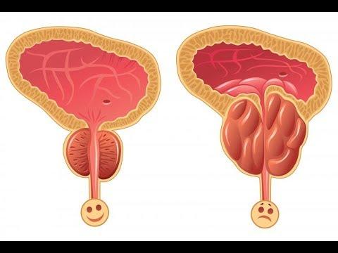 Dopo uninfezione virale della prostata