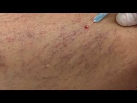 Su thrombophlebitis delle estremità più basse di una fotografia