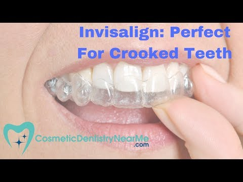 Invisalign® – Perfect for Crooked Teeth?