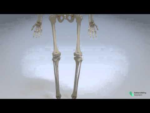 Wie die zervikalen Osteochondrose Kopfschmerzen bestimmen