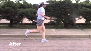 Running- Sciatica and Hamstring Pain Gone with Running Form Correction
