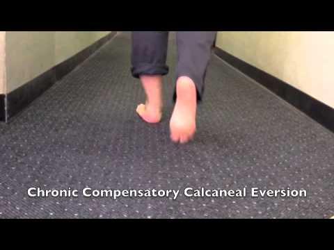 Мозоль на косточке пальца на ноге