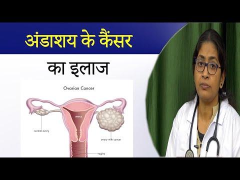 Cancer colorrectal gpc