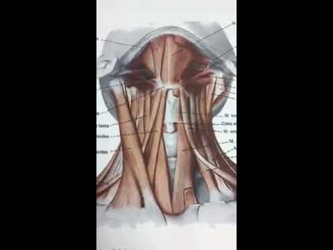Rachide cervicale con spondilite anchilosante