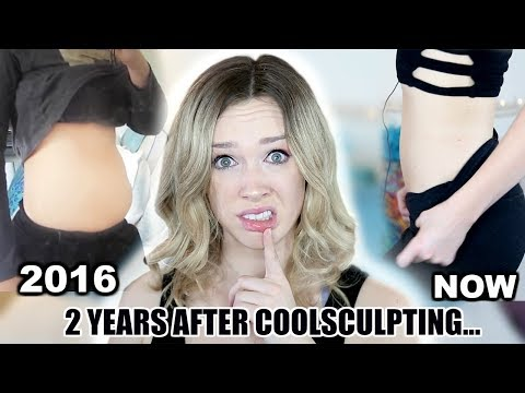 2 YEARS AFTER COOLSCULPTING (fat freezing)! Worth it? How I REALLY Lost The Weight!