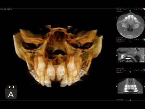 CBCT-Supernumerary Central Incisors