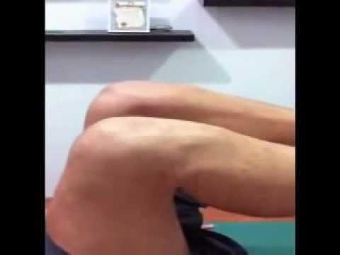 Il trattamento di varicosity in SPb è libero