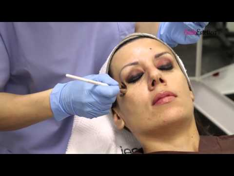 Togliere posti di pigmentary da una faccia