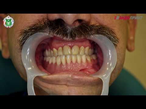 Резекция и восстановление нижней челюсти с сохранением нижнечелюстного нерва