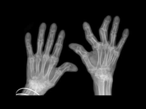 Ce să înțepiți de durerile articulare