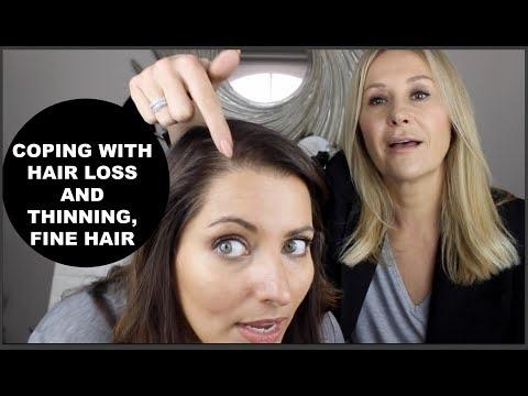 Wypadanie włosów, jak zatrzymać